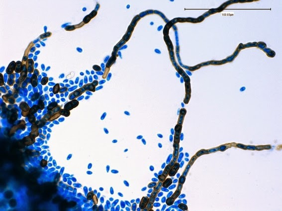 Fun With Microbiology (What's Buggin' You?): Aureobasidium ...  Fun With Microb...