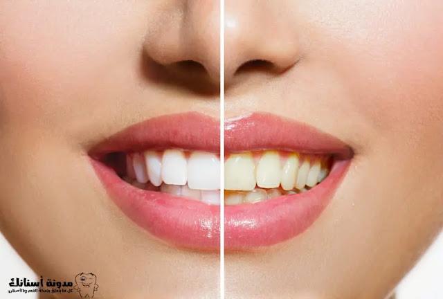 ما سبب اصفرار الأسنان؟وكيف نتخلص منه بطرق بسيطة.