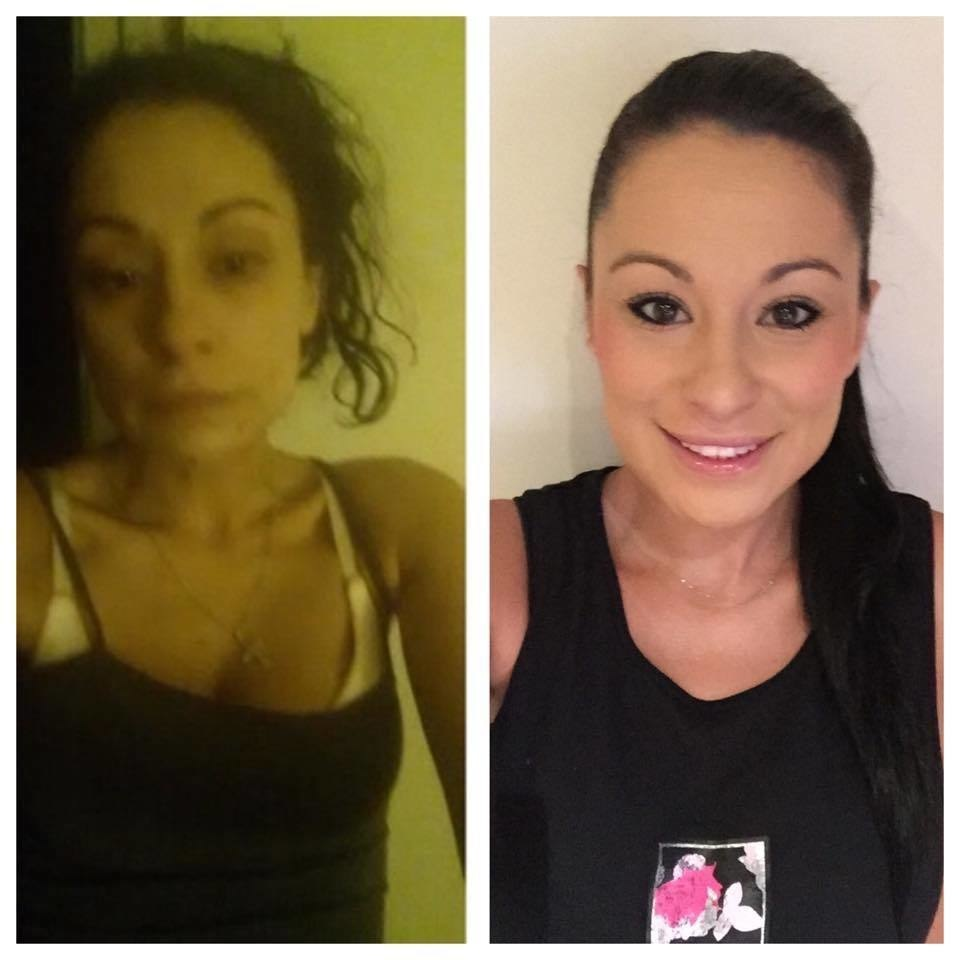 Sarah says this photo was taken the night she felt like she was dying. Her skin was sunken, bruised, and yellow. - Powerful Before/After Photos Of Women Who QUIT Drugs.