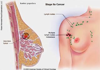 Herbal Untuk Mengobati Kanker Payudara