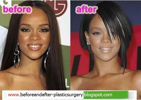 Rihanna Plastic Surgery Before And After Plastic Surgery