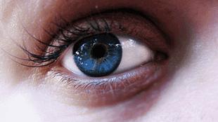 Glokom göz tansiyonu