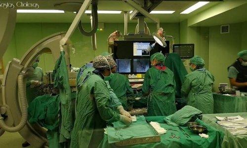 Με απόλυτη επιτυχία πραγματοποιήθηκε στο Πανεπιστημιακό Νοσοκομείο Ιωαννίνων επέμβαση αγγειοπλαστικής υψηλού κινδύνου, σε ασθενή νεαρής ηλικίας με την χρησιμοποίηση συσκευής Impella. Η συσκευή αυτή είναι η πλέον προηγμένη τεχνολογικά συσκευή μηχανικής υποστήριξης της καρδιάς (τεχνητή καρδιά), η οποία τοποθετείται διαδερμικά και βοηθά τη λειτουργία της υπάρχουσας.