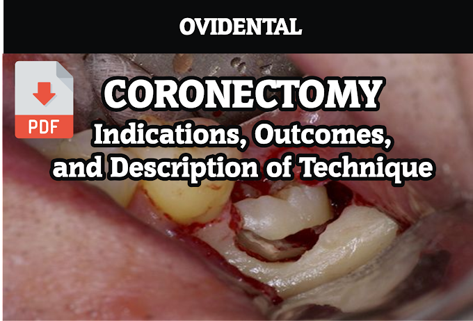 PDF: Coronectomy - Indications, Outcomes, and Description of Technique