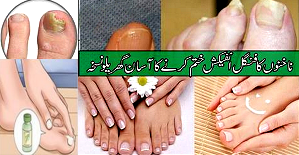 Fungal Toe Nail, Cure By Home Remedies