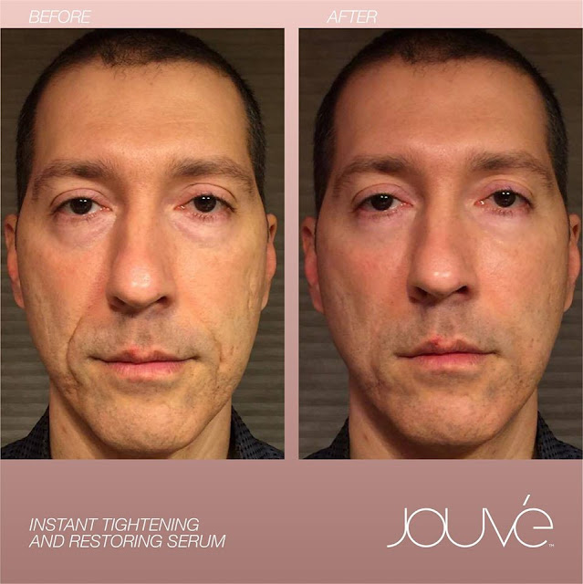 Before After Jouve