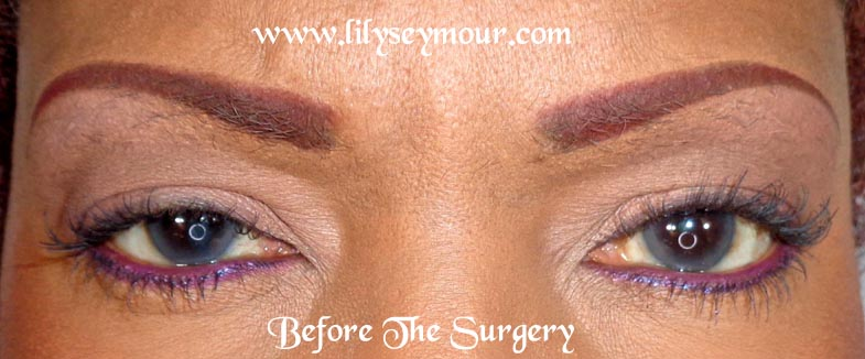 African American Blepharoplasty