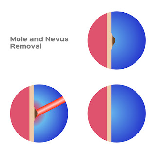 mole and nevus removal vector