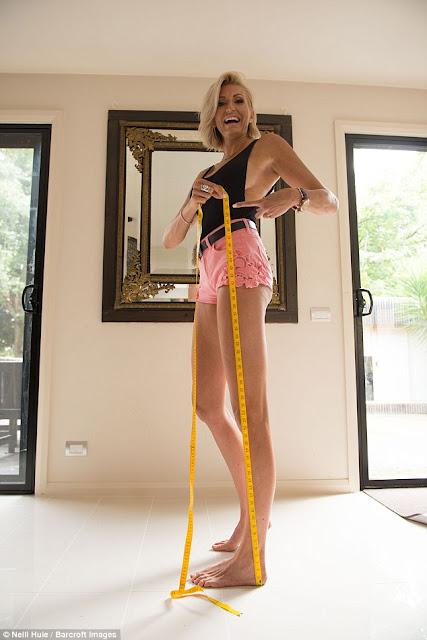 تعرّفوا إلى صاحبة أطول ساقين في العالم.. 130 سنتيمتراً!