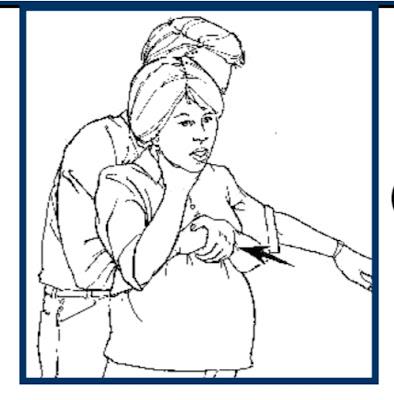 إسعافات اوليه في حالة اختناق مرأة حامل او شخص سمين