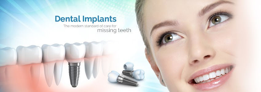 Are Dental Implants Successful