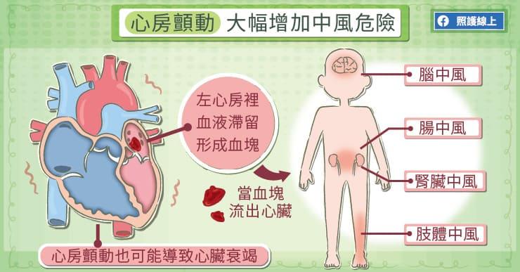 心房顫動會大幅提高中風的機率