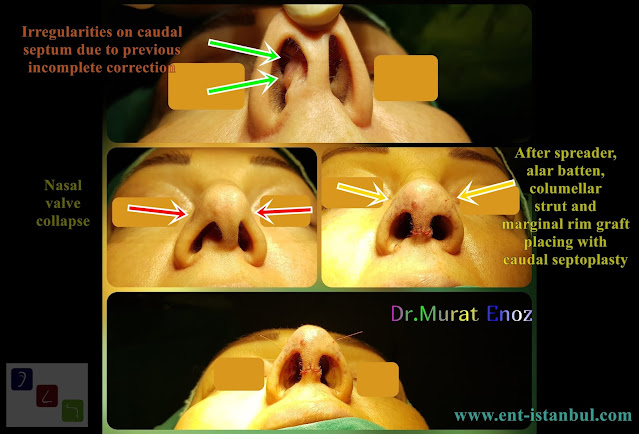 We Performed Revision Open Technique Caudal Septoplasty + Nasal Valve Surgery
