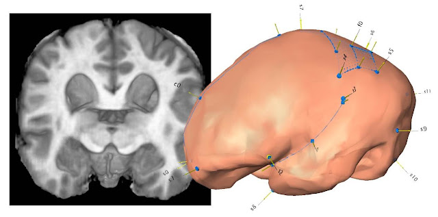 Brain, shape and fossils