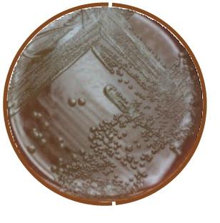 NEISSERIA MENINGITIDIS ON CHOCOLATE II AGAR