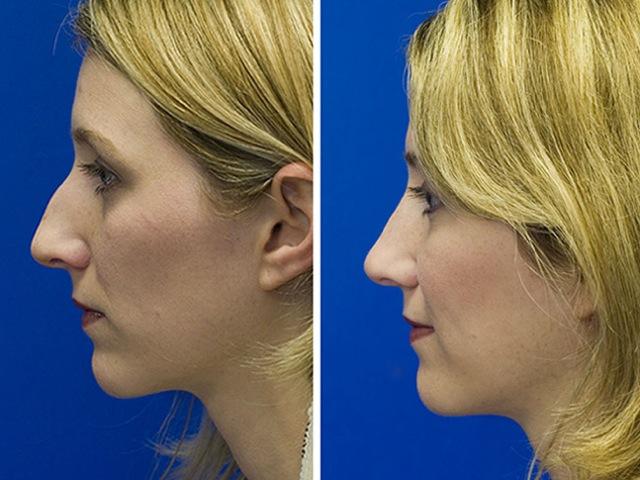 nasal-hump-rhinoplasty
