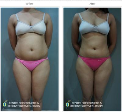 Liposuction in Mumbai