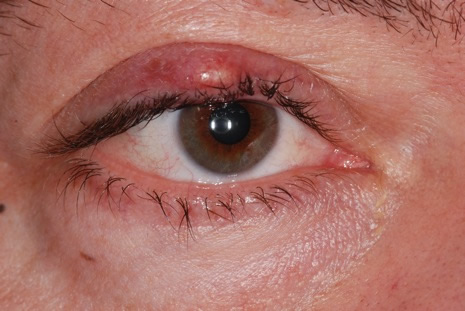 hordeolum internum | ophthalmology: diseases symptoms and treatment, Skeleton