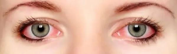 علاج التهاب وتهيج العين ونصائح للوقاية منه