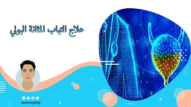 علاج التهاب المثانة-الأسباب والأعراض وطرق العلاج المختلفة بالادوية