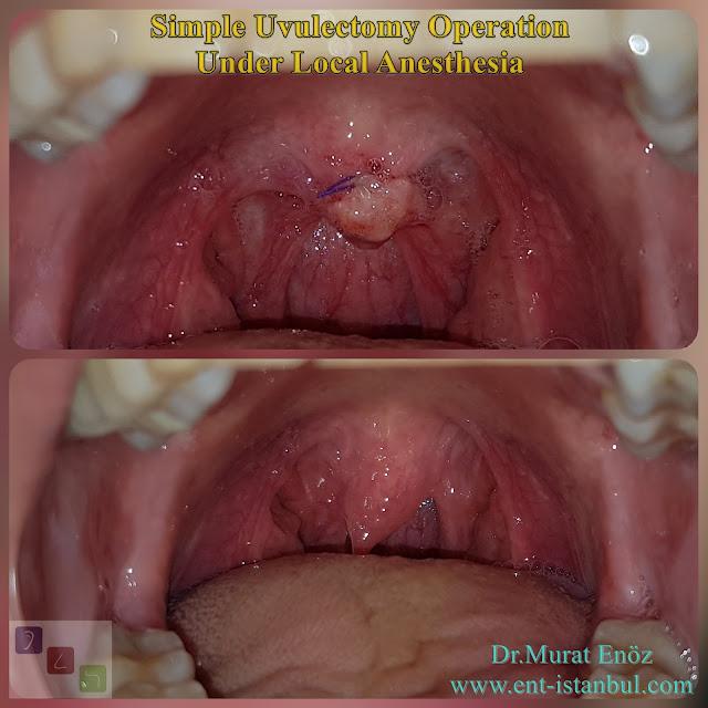 Uvula Excision, uvulectomy, elongated uvula, uvula removal operation