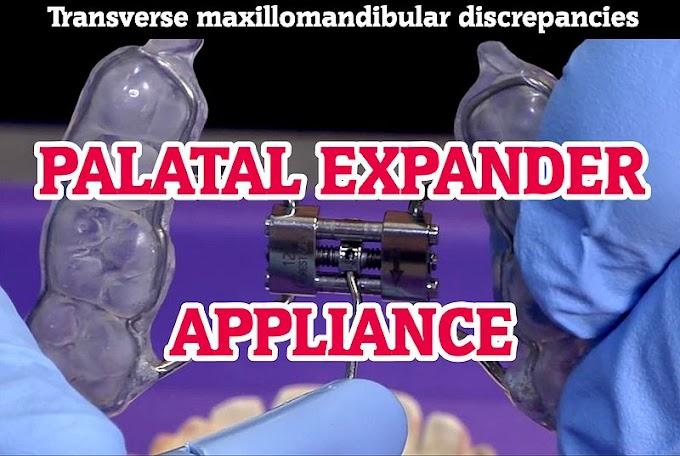 PALATAL EXPANDER Appliance for transverse maxillomandibular discrepancies