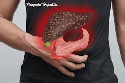 Apa yang Dimaksud Penyakit Hepatitis, Berikut Jawaban Dokter