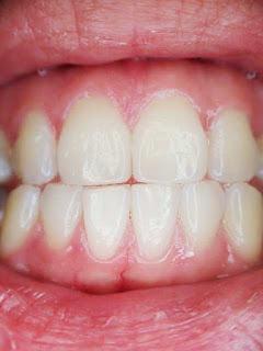 أسباب وأضرار صرير الأسنان