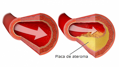 colesterol en arterias