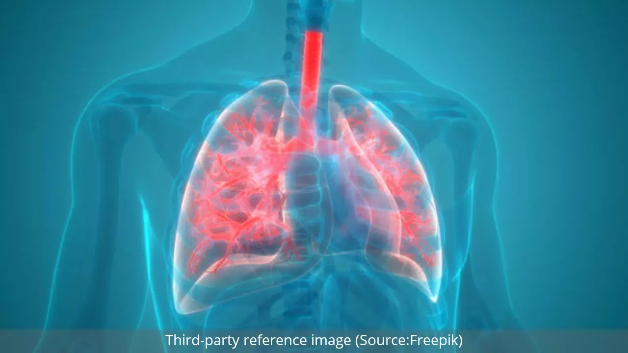 Pneumonia : Symptoms, Causes, Types and Treatment | HealthInsta
