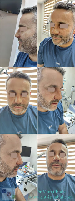 10 days after Revision Rhinoplasty Operation + Septum Perforation Closure Surgery