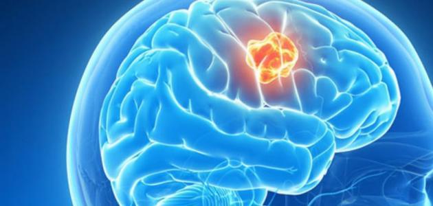 اعراض ورم المخ و اسبابه  و انواع ورم المخ و طرق العلاج