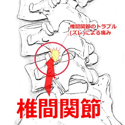 椎間関節性の腰痛 神戸やすらぎ訪問マッサージ