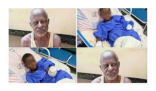 Police Arrests Herbalist Who Allegedly Burnt Teenager Hands In Nasarawa