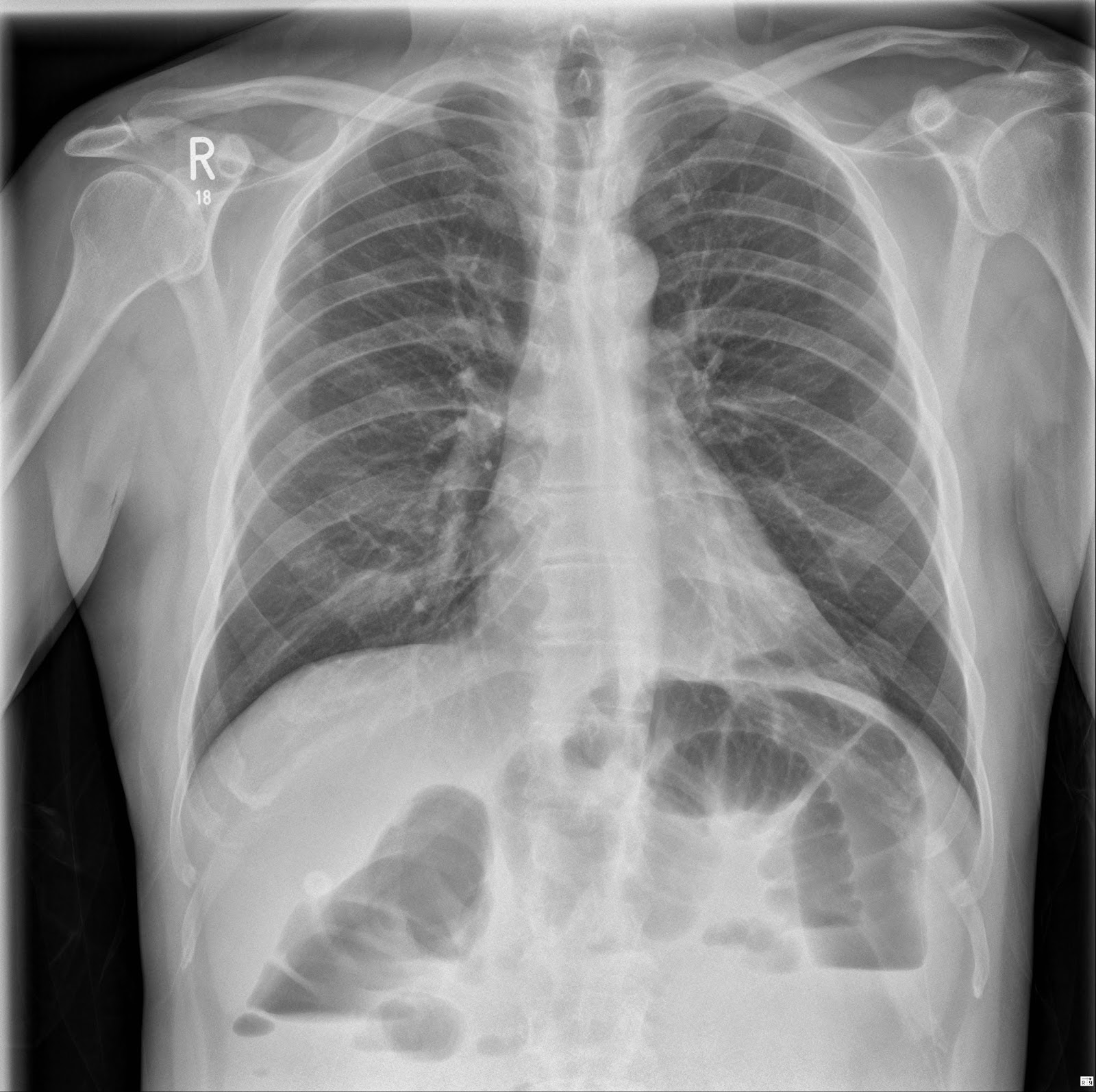 the xray doctor: xrayoftheweek 13: can you pinpoint the ...