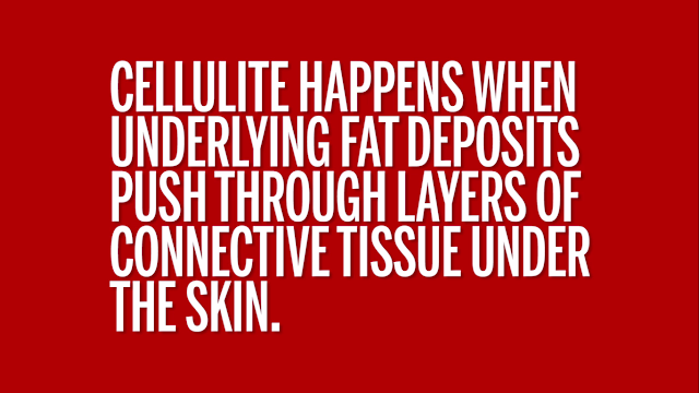 Why cellulite occurs.