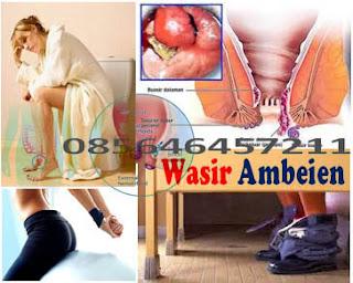 Obat Wasir / Hemoroid, Pembengkakan dan Iritasi