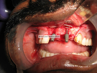 Best Laser Dental Clinic Basal Implants In Chennai