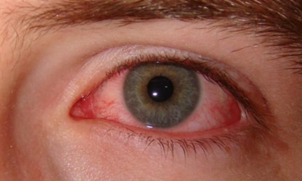 4 Uveitis, Causes, Symptoms and How to Overcome