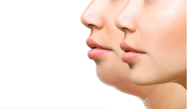 6 Easy Home Remedies To Get Rid Of Double Chin