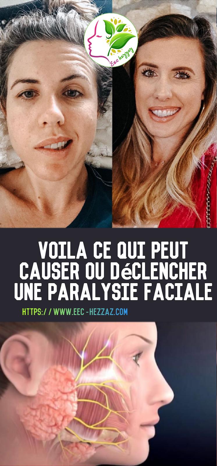 Voila ce qui peut causer ou déclencher une paralysie faciale