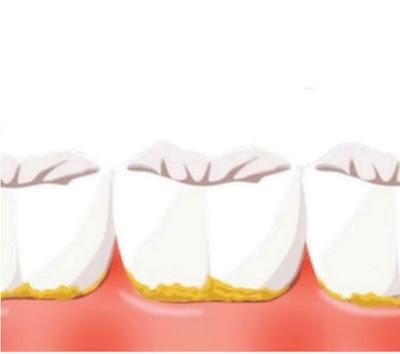 كيف ازيل الجير من الاسنان : الاسباب الوقاية والعلاج