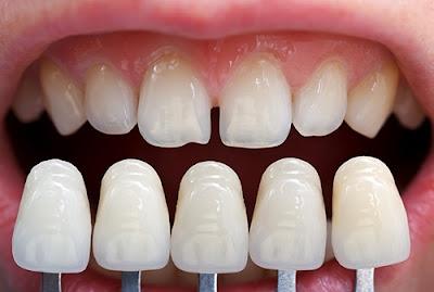 bọc răng sứ có tháo ra được không -2