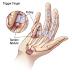 Perawatan Fisioterapi untuk Trigger Finger