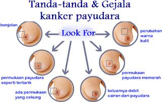 kanker payudara getah bening, kanker payudara latar belakang, obat herbal pencegah kanker payudara, obat alami utk kanker payudara, kanker payudara obat, obat tradisional pengobatan kanker payudara, harga obat kemoterapi kanker payudara, kanker payudara menurut para ahli, www.obat kangker payudara.com, menyembuhkan kanker payudara alami, obat terapi kanker payudara, cara untuk mengobati kanker payudara, kanker payudara stadium 2 apa bisa sembuh, tanaman herbal penyembuh kanker payudara, cara penyembuhan kanker payudara stadium 4, 0bat herbal kanker payudara, pengobatan kanker payudara alternatif, pengobatan kanker payudara stadium lanjut, mengobati gejala kanker payudara, olahraga menyembuhkan kanker payudara, kanker payudara etiologi, jenis kanker payudara stadium 4, kanker payudara dan rokok, obat kanker payudara yg manjur, biaya pengobatan kanker payudara di malaysia, cara mengatasi kanker payudara alami, cara membuat obat kanker payudara dari daun sirsak