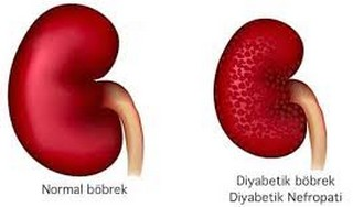 diyabetik nefropati