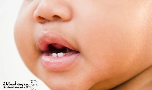 كيفية امنع تسوس الاسنان عند الاطفال.