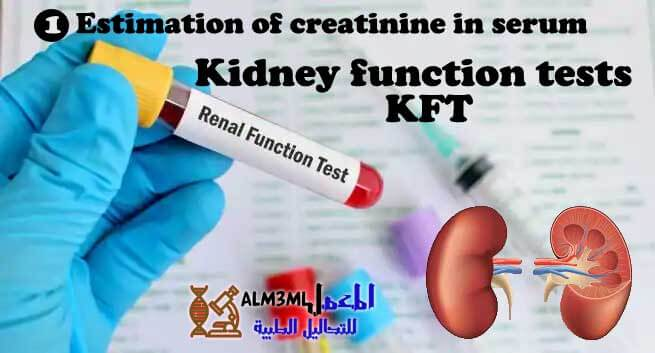 Estimation of creatinine in serum