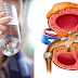 Four Easy Ways To Use Apple Cider Vinegar For Dissolving Kidney Stones And Toxins