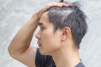 Fakta Tentang Rambut Beruban